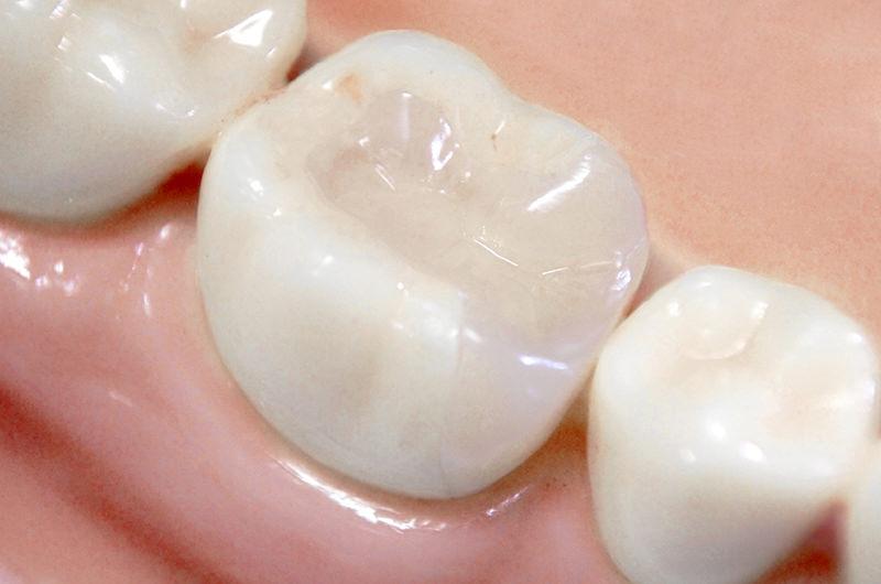 セラミック専門の歯科技工士とも連携