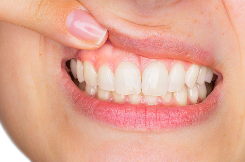 歯茎を美しくするための歯周外科治療