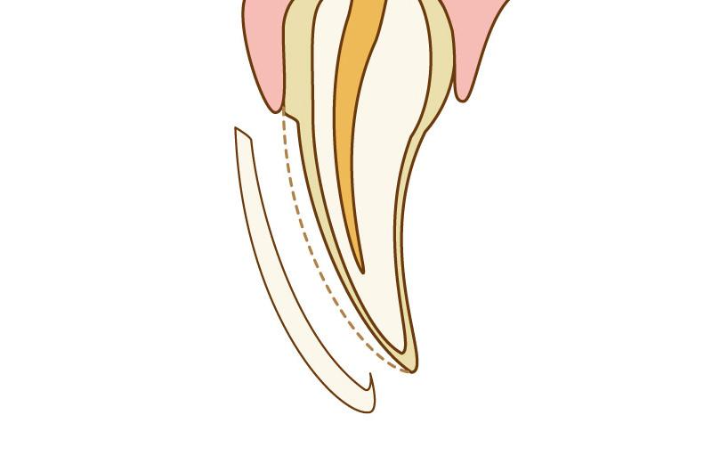 ホワイトニングでは歯が白くならなかった