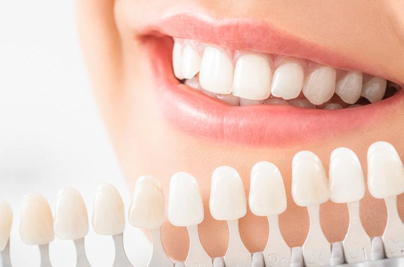 気になる歯の着色・黄ばみを解消